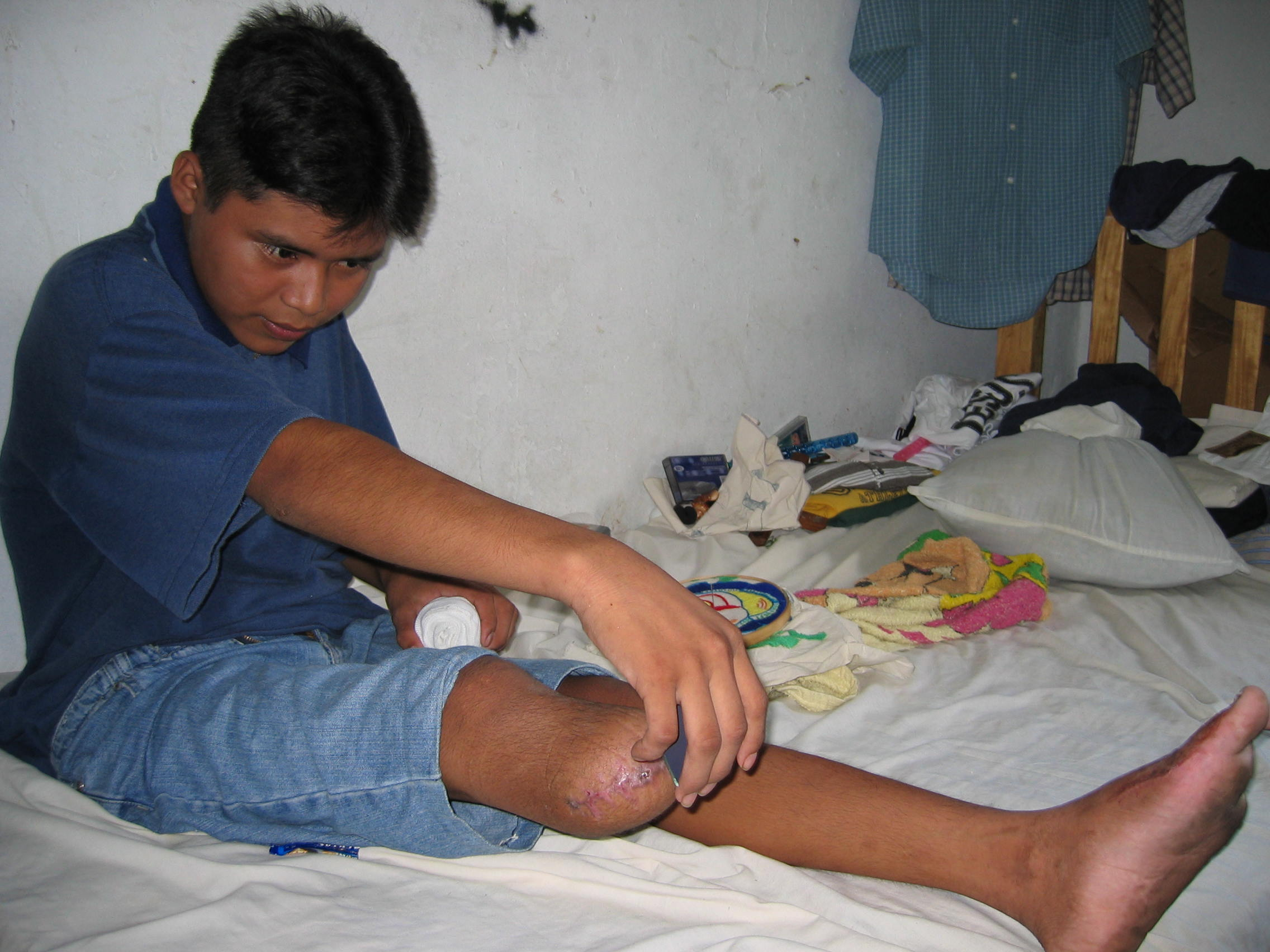 Hugo Tambrís Sióp, 14, checks how well his wounds are healing with the help of a mirror. He lost part of his right leg and three toes on his left foot.