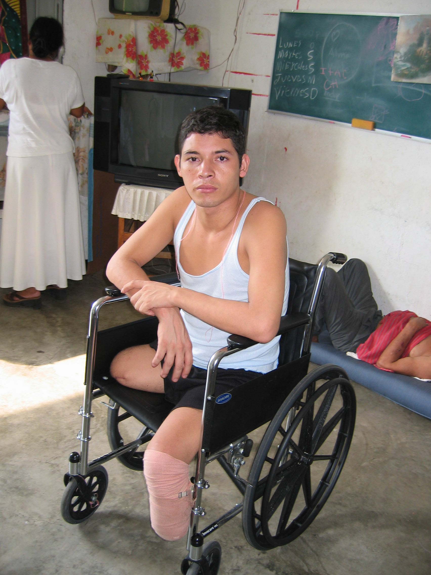 Tránsito Encarnación Martínes Hernández, from Honduras, lost part of both legs to a train.